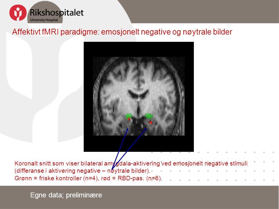 Affektivt fMRI paradigme: emosjonelt negative og nøytrale bilder Koronalt snitt som viser bilateral amygdala-aktivering ved emosjonelt negative stimul
