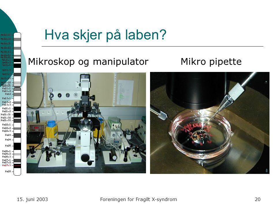 15. juni 2003Foreningen for Fragilt X-syndrom20 Hva skjer på laben? Mikroskop og manipulatorMikro pipette