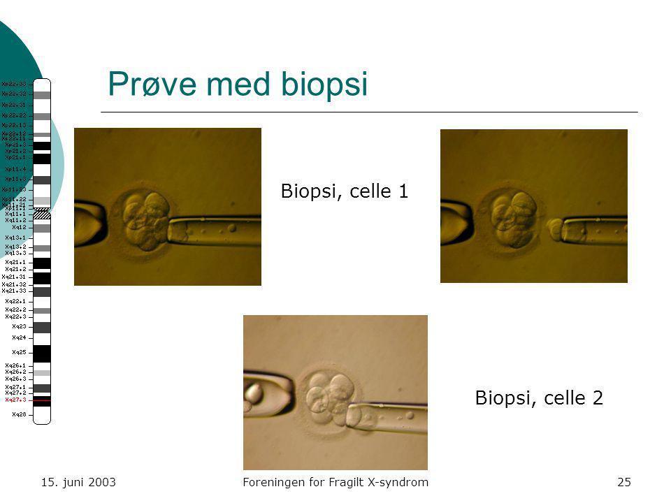 15. juni 2003Foreningen for Fragilt X-syndrom25 Prøve med biopsi Biopsi, celle 1 Biopsi, celle 2