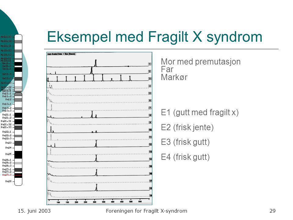 15. juni 2003Foreningen for Fragilt X-syndrom29 Eksempel med Fragilt X syndrom Mor med premutasjon Far Markør E1 (gutt med fragilt x) E2 (frisk jente)