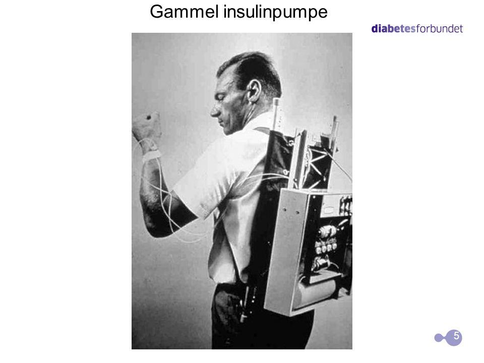  Ved å bruke insulinpumpe, kan man lett matche insulininntaket til å passe med livsstilen, isteden for å endre livsstilen til å passe med insulintilf