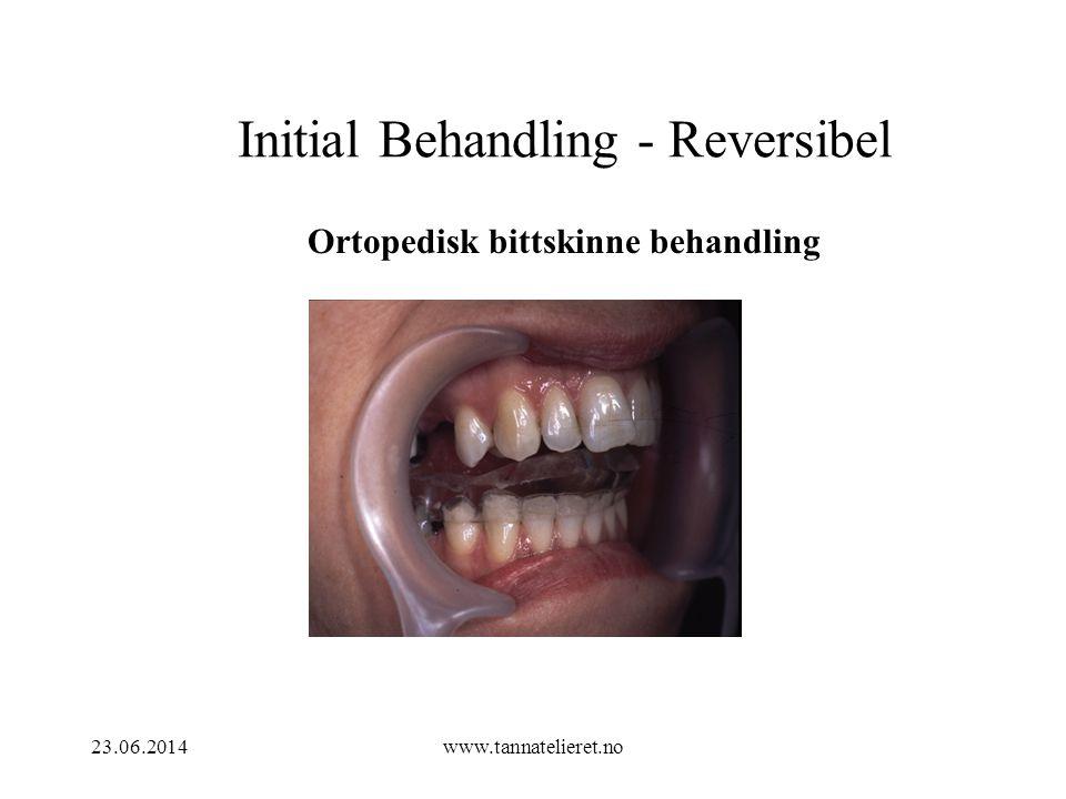 23.06.2014www.tannatelieret.no Initial Behandling - Reversibel Ortopedisk bittskinne behandling