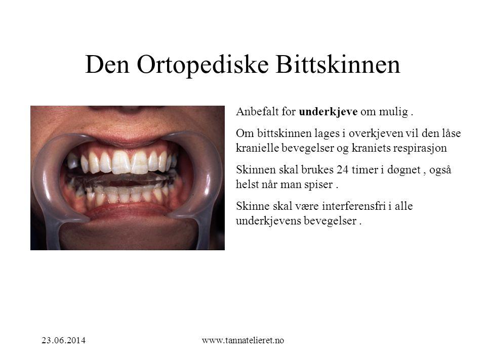 23.06.2014www.tannatelieret.no Den Ortopediske Bittskinnen Anbefalt for underkjeve om mulig. Om bittskinnen lages i overkjeven vil den låse kranielle