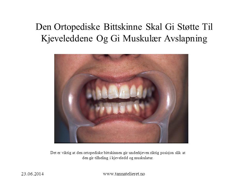 23.06.2014www.tannatelieret.no Den Ortopediske Bittskinne Skal Gi Støtte Til Kjeveleddene Og Gi Muskulær Avslapning Det er viktig at den ortopediske b