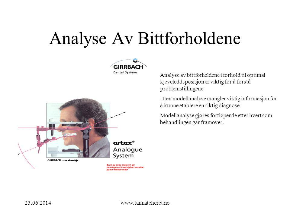 23.06.2014www.tannatelieret.no Analyse Av Bittforholdene Analyse av bittforholdene i forhold til optimal kjeveleddsposisjon er viktig for å forstå pro
