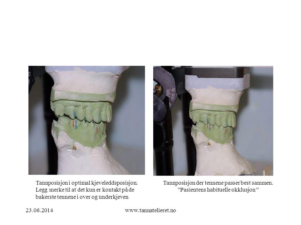 23.06.2014www.tannatelieret.no Tannposisjon i optimal kjeveleddsposisjon. Legg merke til at det kun er kontakt på de bakerste tennene i over og underk