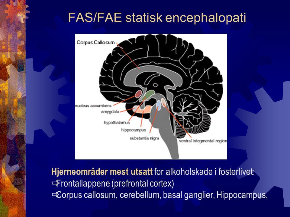 FAS/FAE statisk encephalopati Hjerneområder mest utsatt for alkoholskade i fosterlivet:  Frontallappene (prefrontal cortex)  Corpus callosum, cerebellum, basal ganglier, Hippocampus,