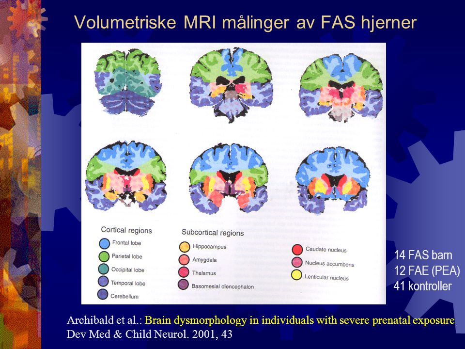 Volumetriske MRI målinger av FAS hjerner Archibald et al.: Brain dysmorphology in individuals with severe prenatal exposure Dev Med & Child Neurol. 20