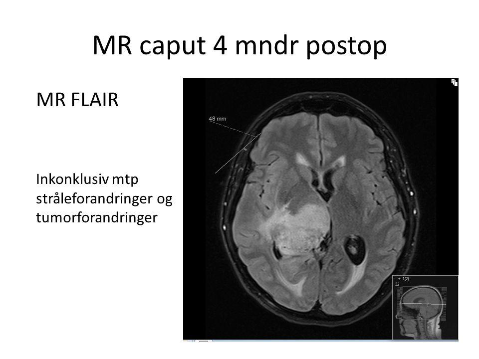 MR caput 4 mndr postop MR FLAIR Inkonklusiv mtp stråleforandringer og tumorforandringer