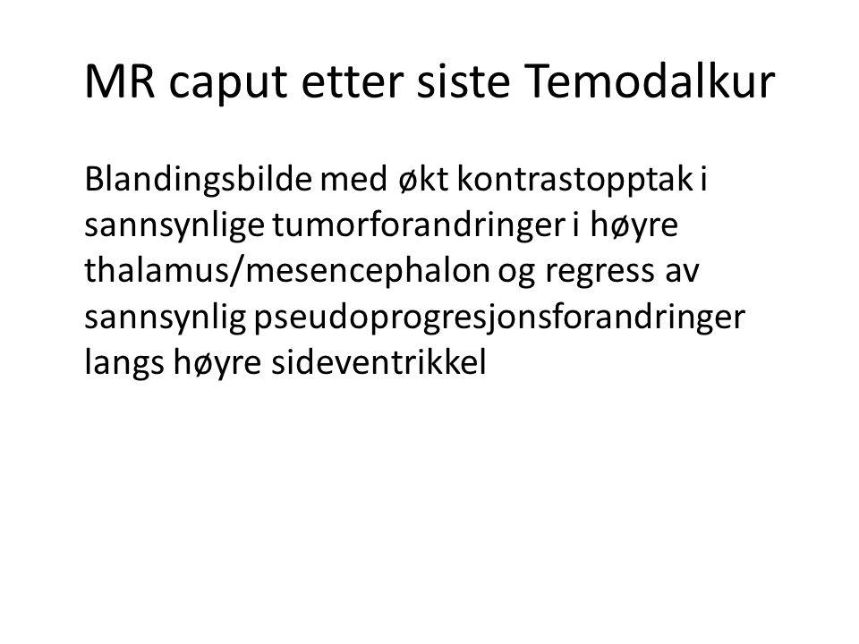 MR caput etter siste Temodalkur Blandingsbilde med økt kontrastopptak i sannsynlige tumorforandringer i høyre thalamus/mesencephalon og regress av san