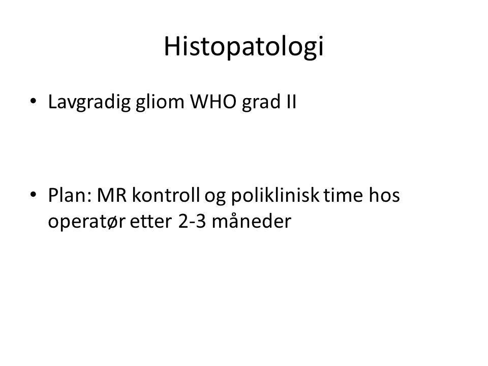 Histopatologi • Lavgradig gliom WHO grad II • Plan: MR kontroll og poliklinisk time hos operatør etter 2-3 måneder