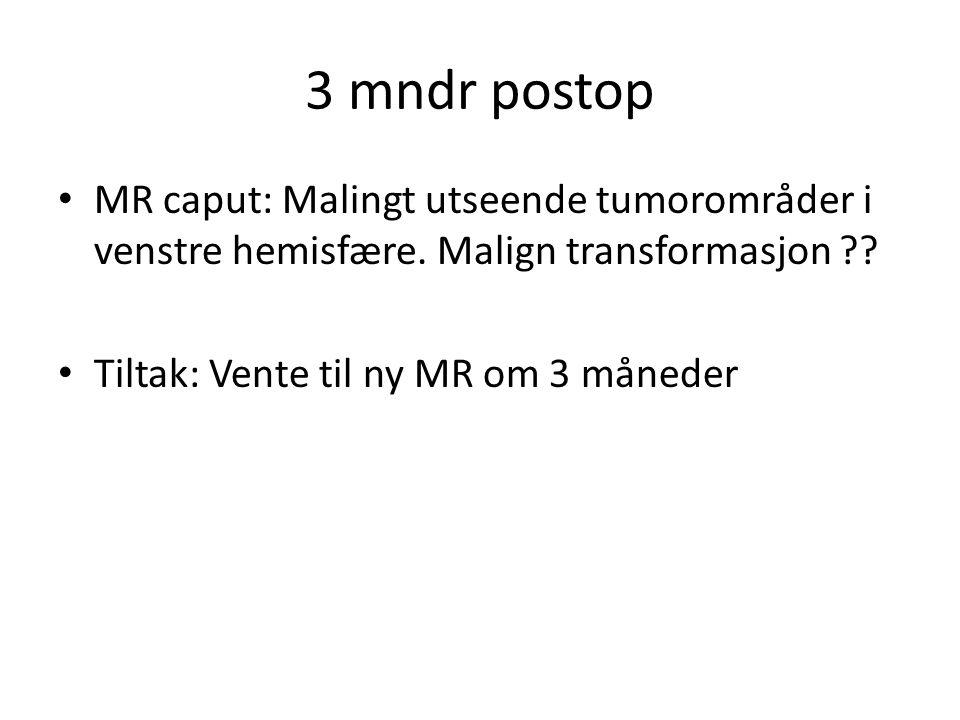 3 mndr postop • MR caput: Malingt utseende tumorområder i venstre hemisfære. Malign transformasjon ?? • Tiltak: Vente til ny MR om 3 måneder