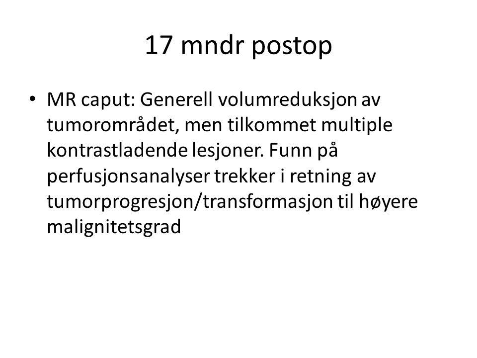 17 mndr postop • MR caput: Generell volumreduksjon av tumorområdet, men tilkommet multiple kontrastladende lesjoner. Funn på perfusjonsanalyser trekke