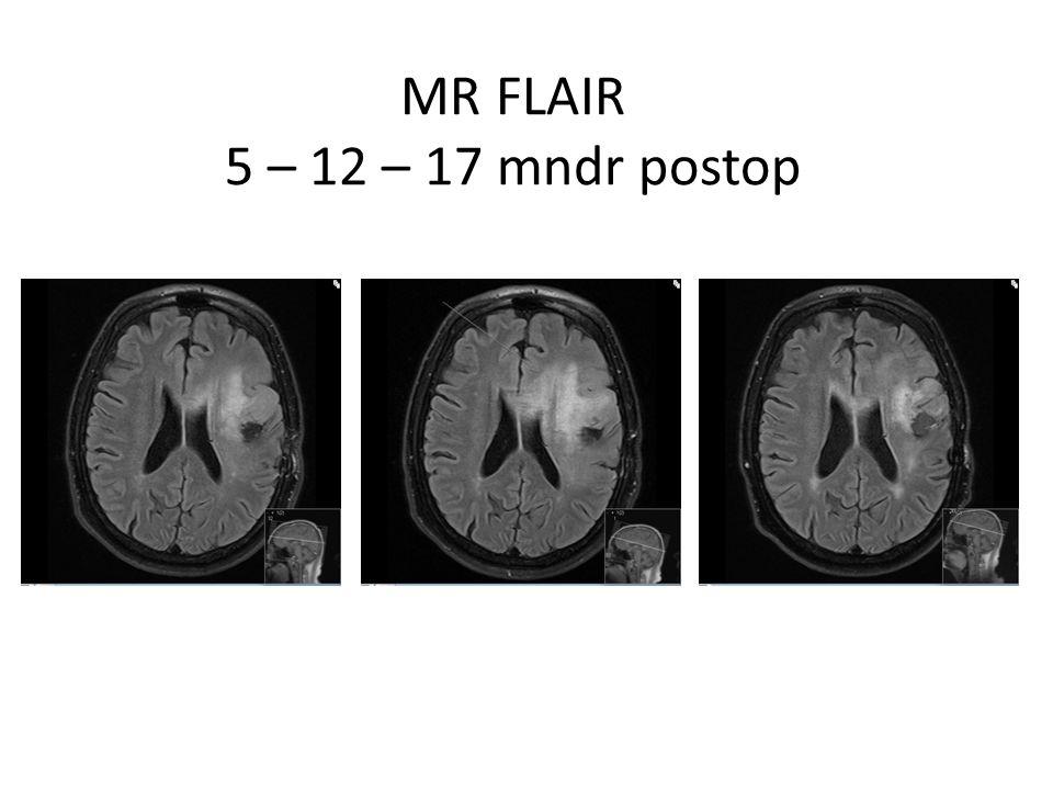 MR FLAIR 5 – 12 – 17 mndr postop