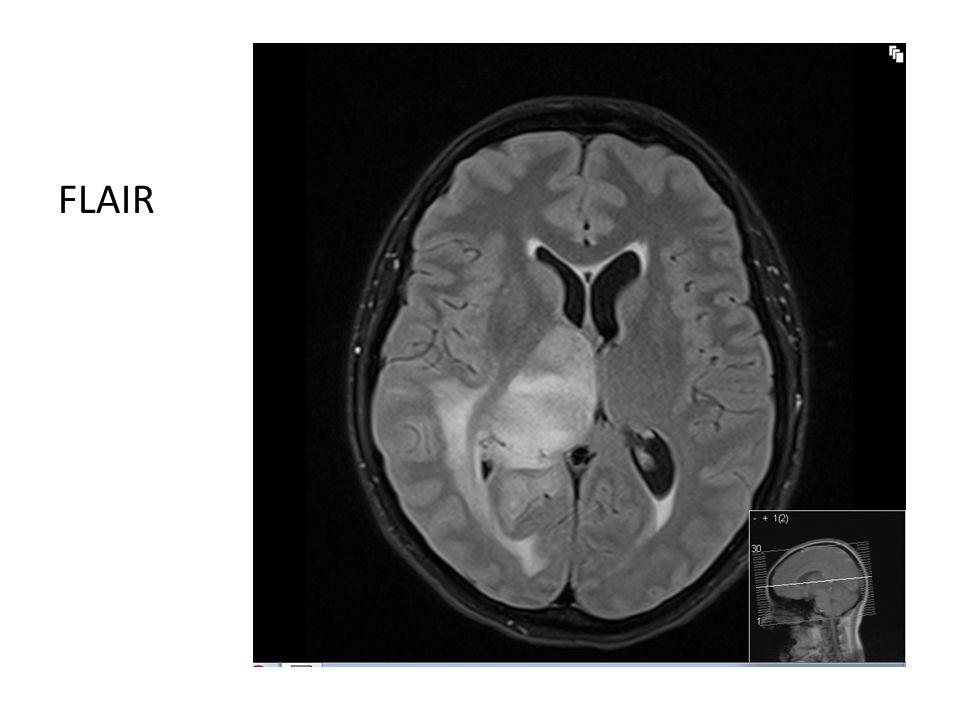 Forløp • 2 måneder etter innleggelse: Epileptiske anfall, øket litt på antiepileptika • 3 måneder etter innleggelse: Hyppigere anfall, postiktal parese høyre overeks • Tiltak: Legger til Levetiracetam