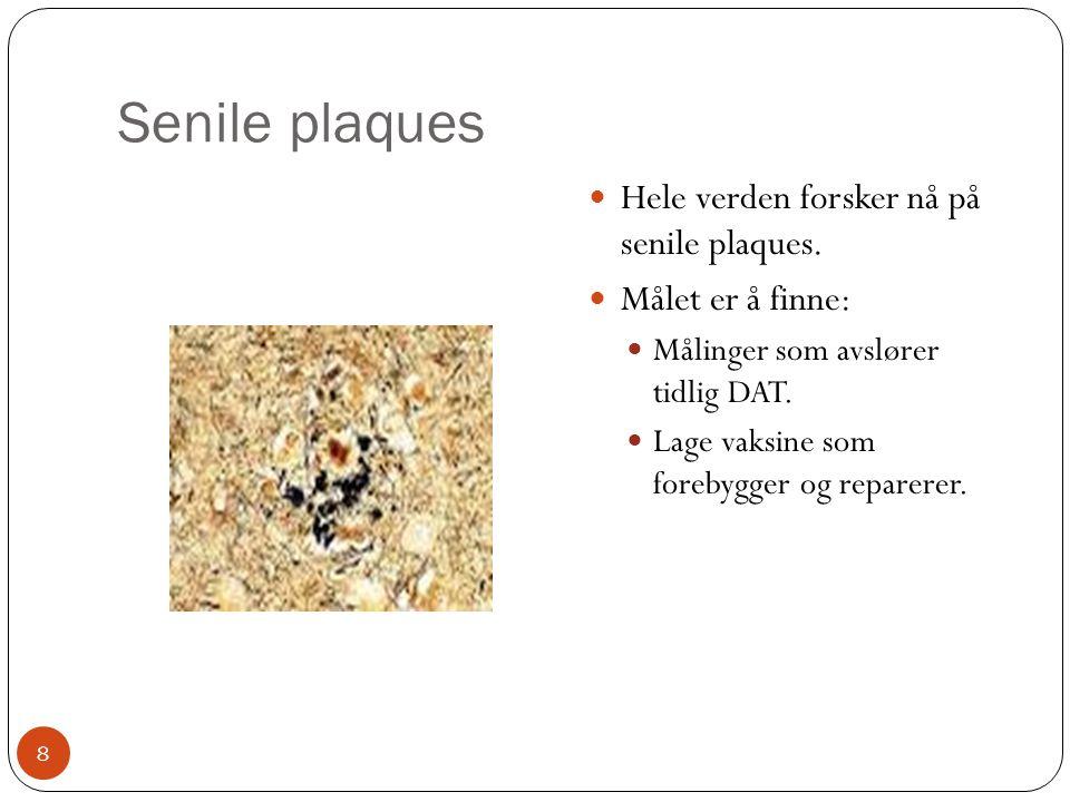 Senile plaques  Hele verden forsker nå på senile plaques.  Målet er å finne:  Målinger som avslører tidlig DAT.  Lage vaksine som forebygger og re