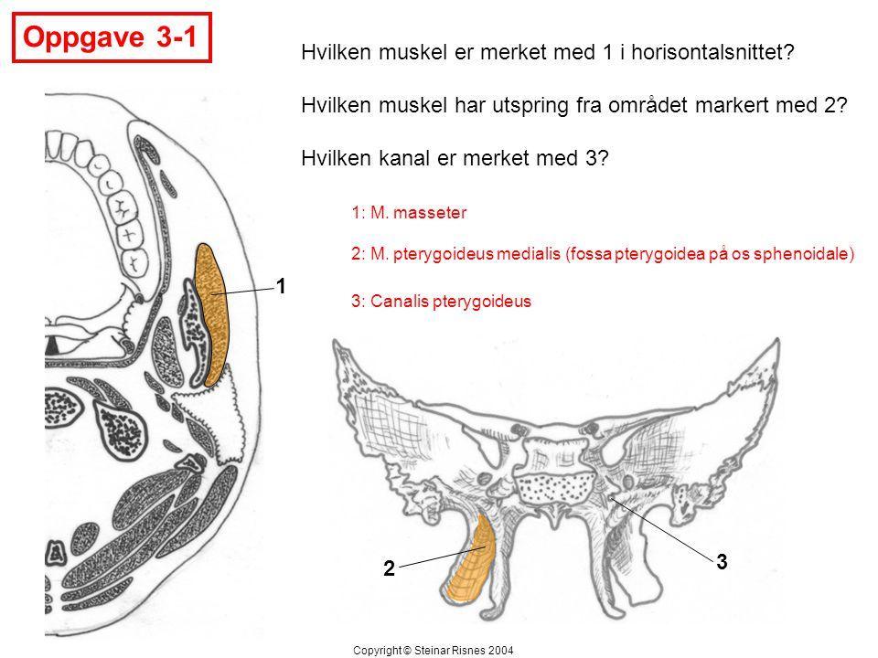 Oppgave 3-1 1 2 3 Hvilken muskel er merket med 1 i horisontalsnittet? Hvilken muskel har utspring fra området markert med 2? Hvilken kanal er merket m