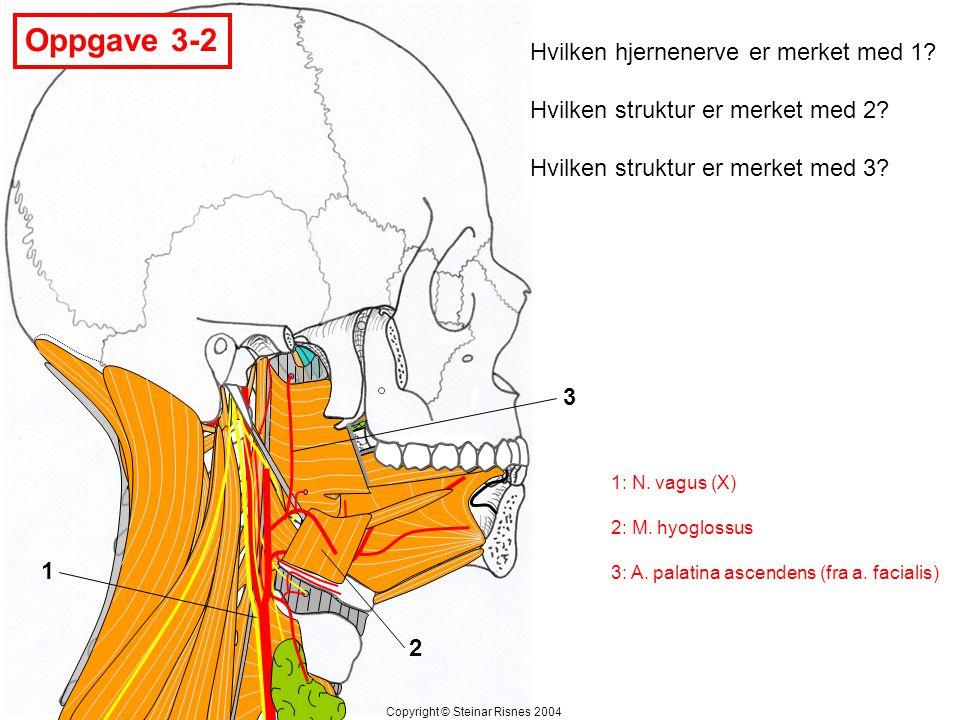 Oppgave 3-2 1 2 3 Hvilken hjernenerve er merket med 1? Hvilken struktur er merket med 2? Hvilken struktur er merket med 3? Copyright © Steinar Risnes