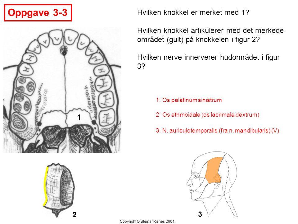 Oppgave 3-3 1 2 Hvilken knokkel er merket med 1? Hvilken knokkel artikulerer med det merkede området (gult) på knokkelen i figur 2? Hvilken nerve inne