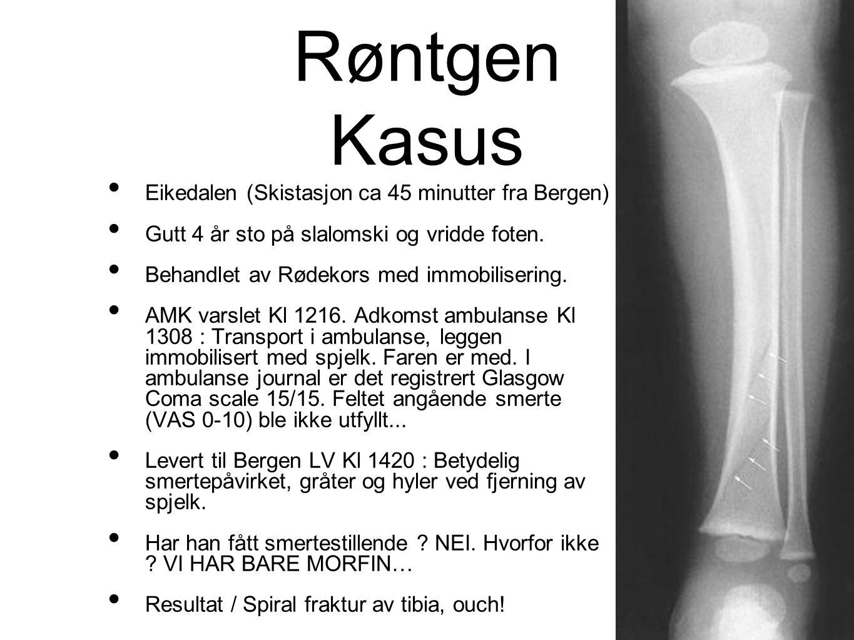 Røntgen Kasus • Eikedalen (Skistasjon ca 45 minutter fra Bergen) • Gutt 4 år sto på slalomski og vridde foten. • Behandlet av Rødekors med immobiliser