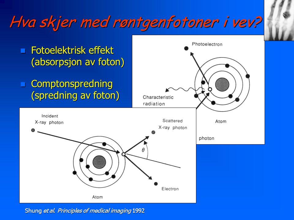 Hva skjer med røntgenfotoner i vev? n Fotoelektrisk effekt (absorpsjon av foton) n Comptonspredning (spredning av foton) Shung et al. Principles of me