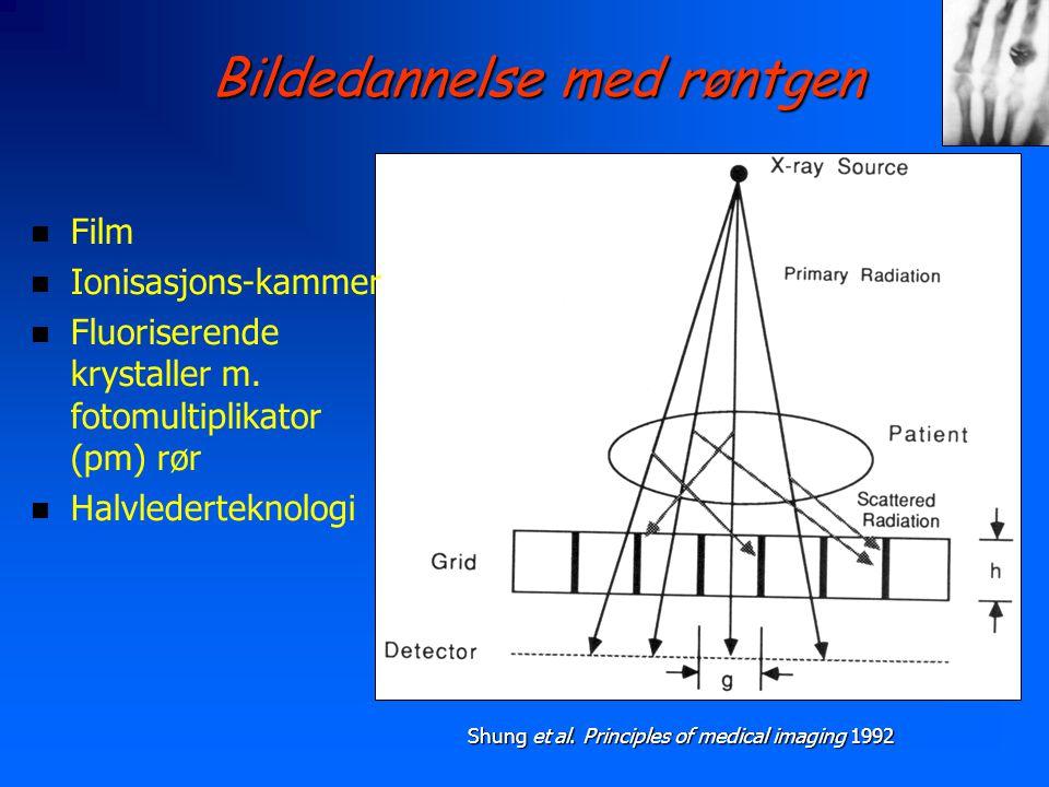 Bildedannelse med røntgen n Film n Ionisasjons-kammer n Fluoriserende krystaller m. fotomultiplikator (pm) rør n Halvlederteknologi Shung et al. Princ