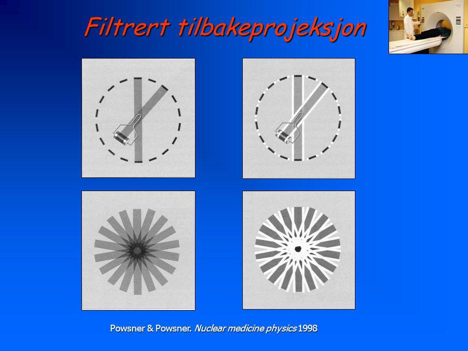 Filtrert tilbakeprojeksjon Powsner & Powsner. Nuclear medicine physics 1998