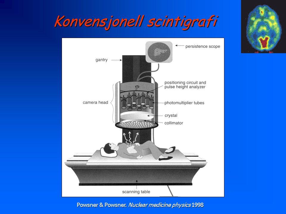 Konvensjonell scintigrafi Powsner & Powsner. Nuclear medicine physics 1998