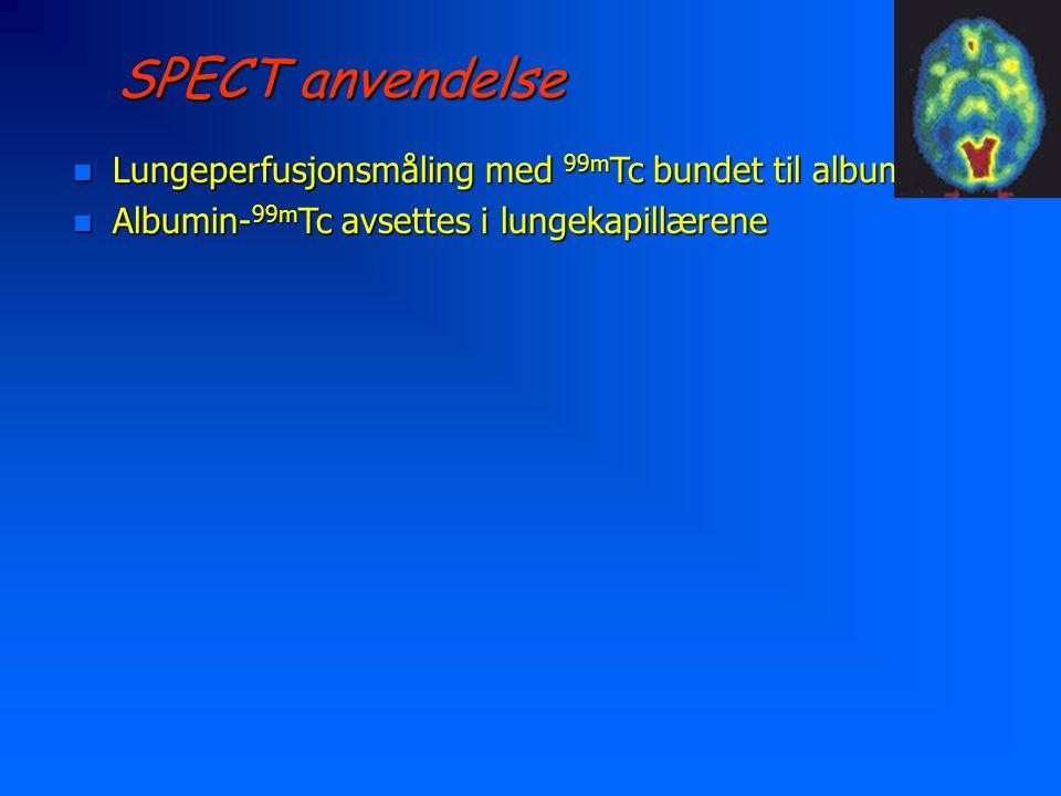 SPECT anvendelse n Lungeperfusjonsmåling med 99m Tc bundet til albumin n Albumin- 99m Tc avsettes i lungekapillærene