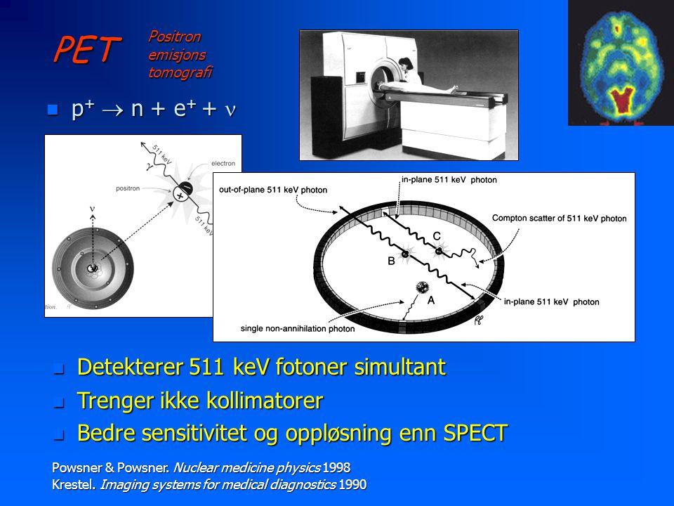 PET n p +  n + e + +  Positron emisjons tomografi n Detekterer 511 keV fotoner simultant Powsner & Powsner.