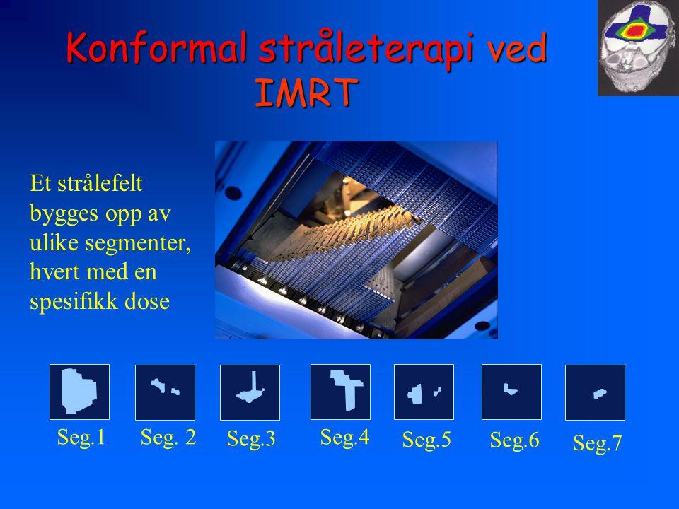 Konformal stråleterapi ved IMRT Seg.1 Seg. 2 Seg.3 Seg.4 Seg.5 Seg.6 Seg.7 Et strålefelt bygges opp av ulike segmenter, hvert med en spesifikk dose