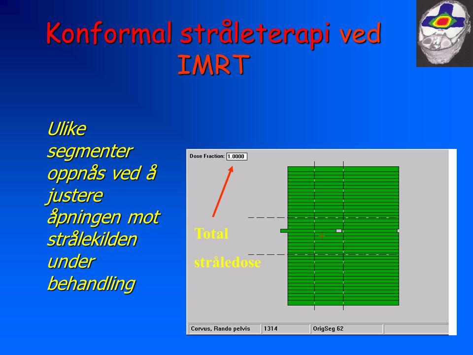 Konformal stråleterapi ved IMRT Ulike segmenter oppnås ved å justere åpningen mot strålekilden under behandling Total stråledose