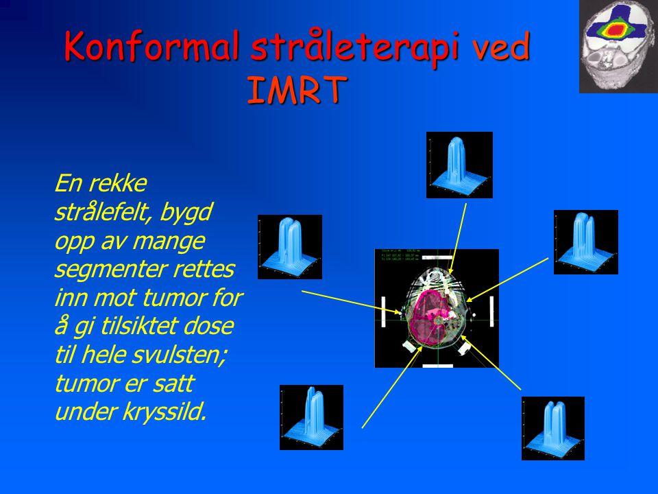 Konformal stråleterapi ved IMRT En rekke strålefelt, bygd opp av mange segmenter rettes inn mot tumor for å gi tilsiktet dose til hele svulsten; tumor er satt under kryssild.