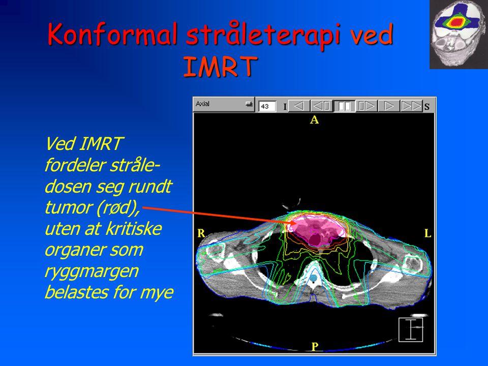 Konformal stråleterapi ved IMRT Ved IMRT fordeler stråle- dosen seg rundt tumor (rød), uten at kritiske organer som ryggmargen belastes for mye