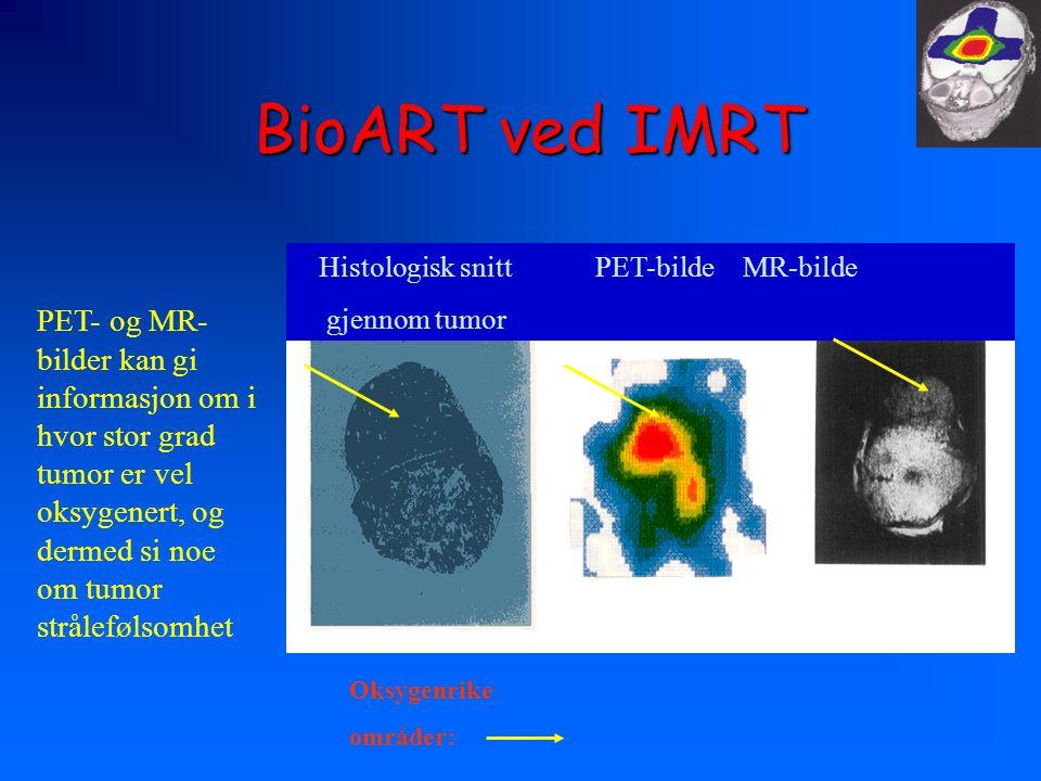 BioART ved IMRT Histologisk snitt PET-bilde MR-bilde gjennom tumor Oksygenrike områder: PET- og MR- bilder kan gi informasjon om i hvor stor grad tumor er vel oksygenert, og dermed si noe om tumor strålefølsomhet