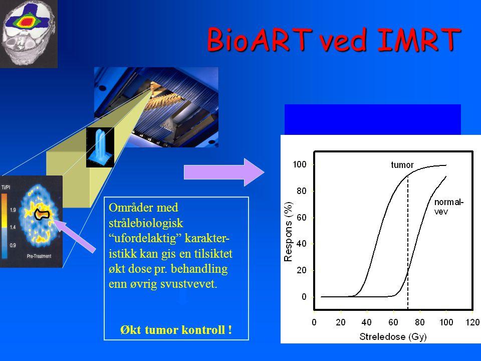 """BioART ved IMRT Områder med strålebiologisk """"ufordelaktig"""" karakter- istikk kan gis en tilsiktet økt dose pr. behandling enn øvrig svustvevet. Økt tum"""