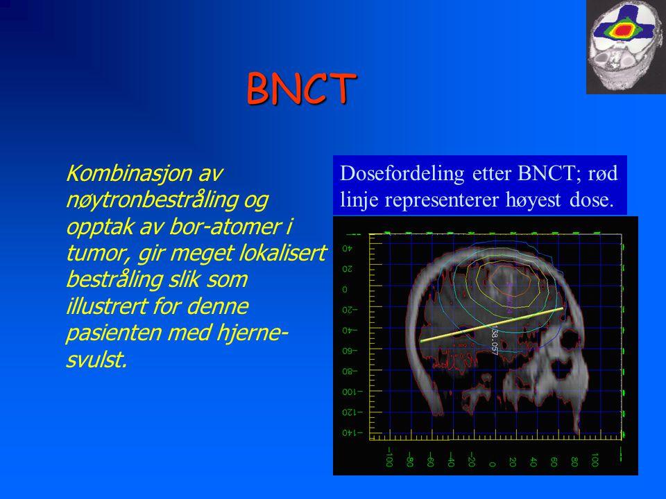 BNCT Kombinasjon av nøytronbestråling og opptak av bor-atomer i tumor, gir meget lokalisert bestråling slik som illustrert for denne pasienten med hje