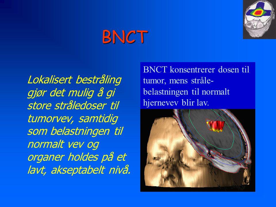 BNCT Lokalisert bestråling gjør det mulig å gi store stråledoser til tumorvev, samtidig som belastningen til normalt vev og organer holdes på et lavt, akseptabelt nivå.