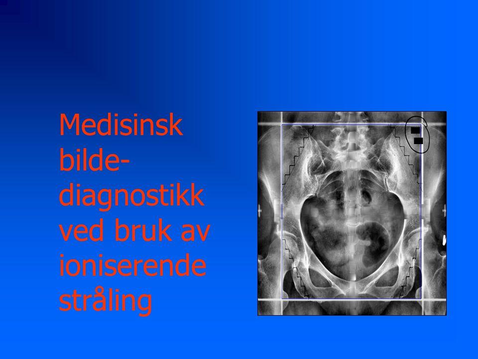 Medisinsk bilde- diagnostikk ved bruk av ioniserende stråling