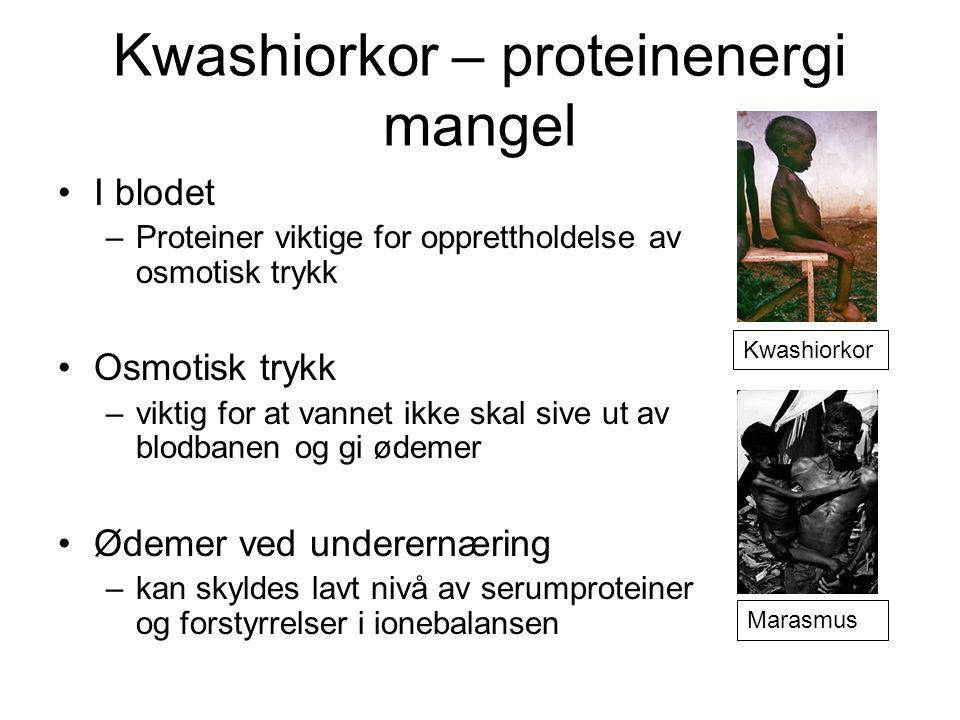 Kwashiorkor – proteinenergi mangel •I blodet –Proteiner viktige for opprettholdelse av osmotisk trykk •Osmotisk trykk –viktig for at vannet ikke skal