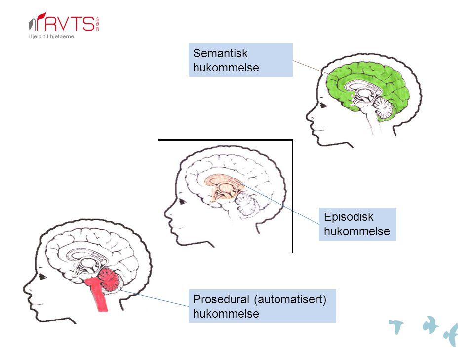 Prosedural (automatisert) hukommelse Episodisk hukommelse Semantisk hukommelse