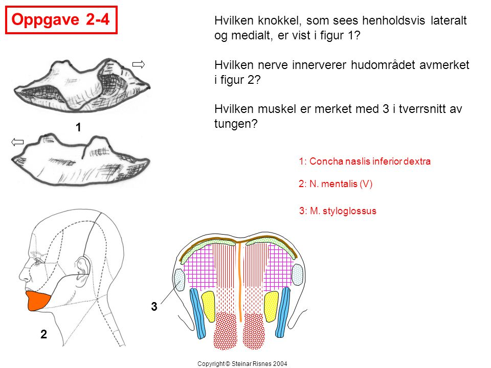 Oppgave 2-4 1 2 3 Hvilken knokkel, som sees henholdsvis lateralt og medialt, er vist i figur 1? Hvilken nerve innerverer hudområdet avmerket i figur 2
