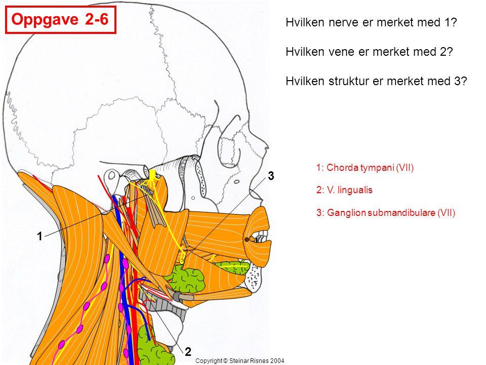 Oppgave 2-7 1 2 3 Angi hulrommene merket med 1, 2 og 3 Copyright © Steinar Risnes 2004 1: Sinus maxillaris 2: Nesehulen (cavitas nasi = cavum nasi) 3: Munnhulen (cavitas oris = cavum oris)