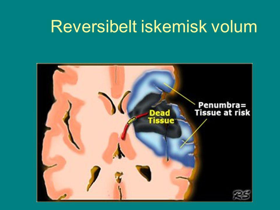 Reversibelt iskemisk volum