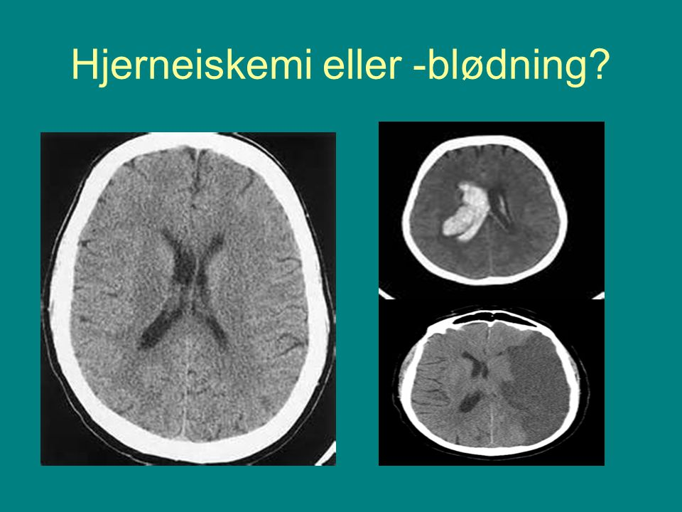 Hjerneiskemi eller -blødning?
