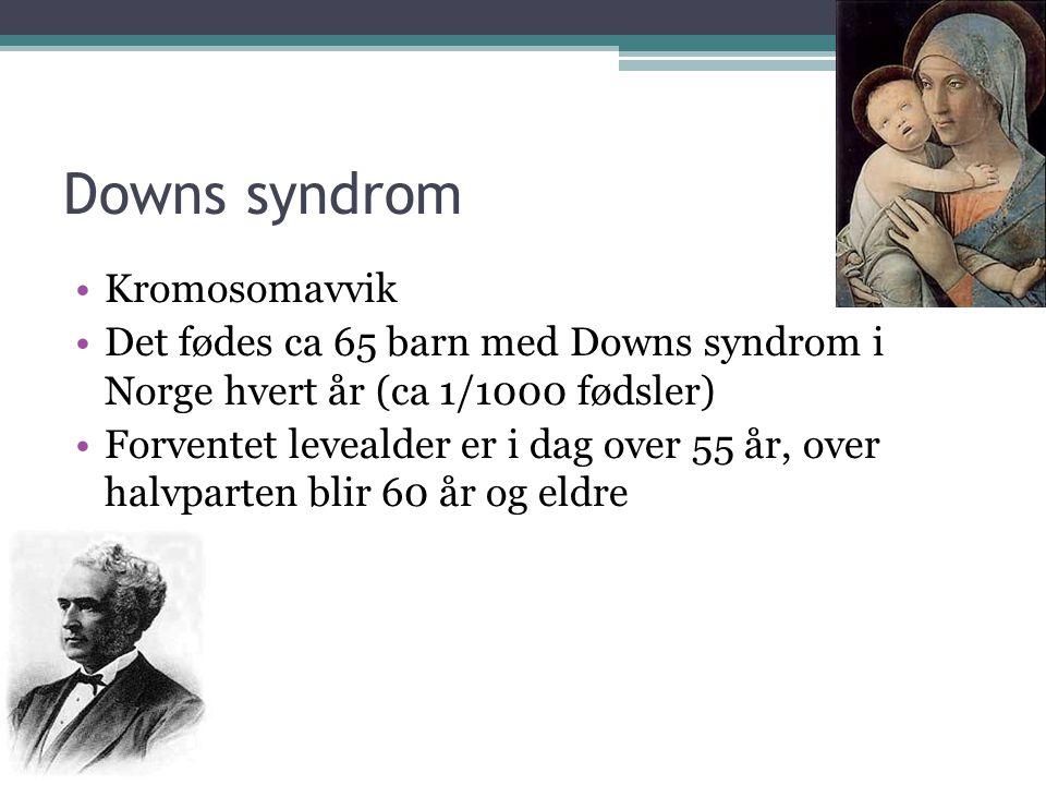 Downs syndrom •Kromosomavvik •Det fødes ca 65 barn med Downs syndrom i Norge hvert år (ca 1/1000 fødsler) •Forventet levealder er i dag over 55 år, ov