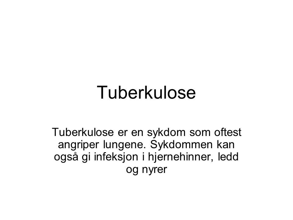 Tuberkulose Tuberkulose er en sykdom som oftest angriper lungene.