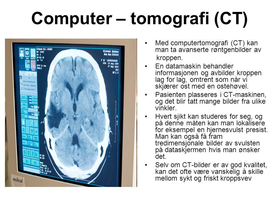 Computer – tomografi (CT) •Med computertomografi (CT) kan man ta avanserte røntgenbilder av kroppen. •En datamaskin behandler informasjonen og avbilde