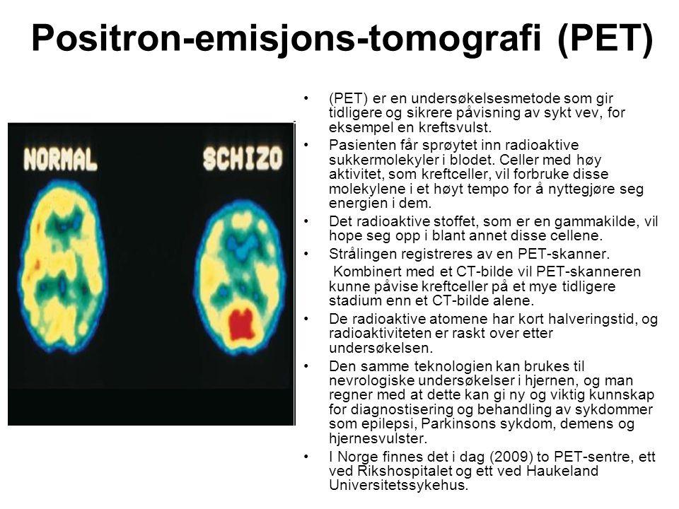Positron-emisjons-tomografi (PET) •(PET) er en undersøkelsesmetode som gir tidligere og sikrere påvisning av sykt vev, for eksempel en kreftsvulst. •P
