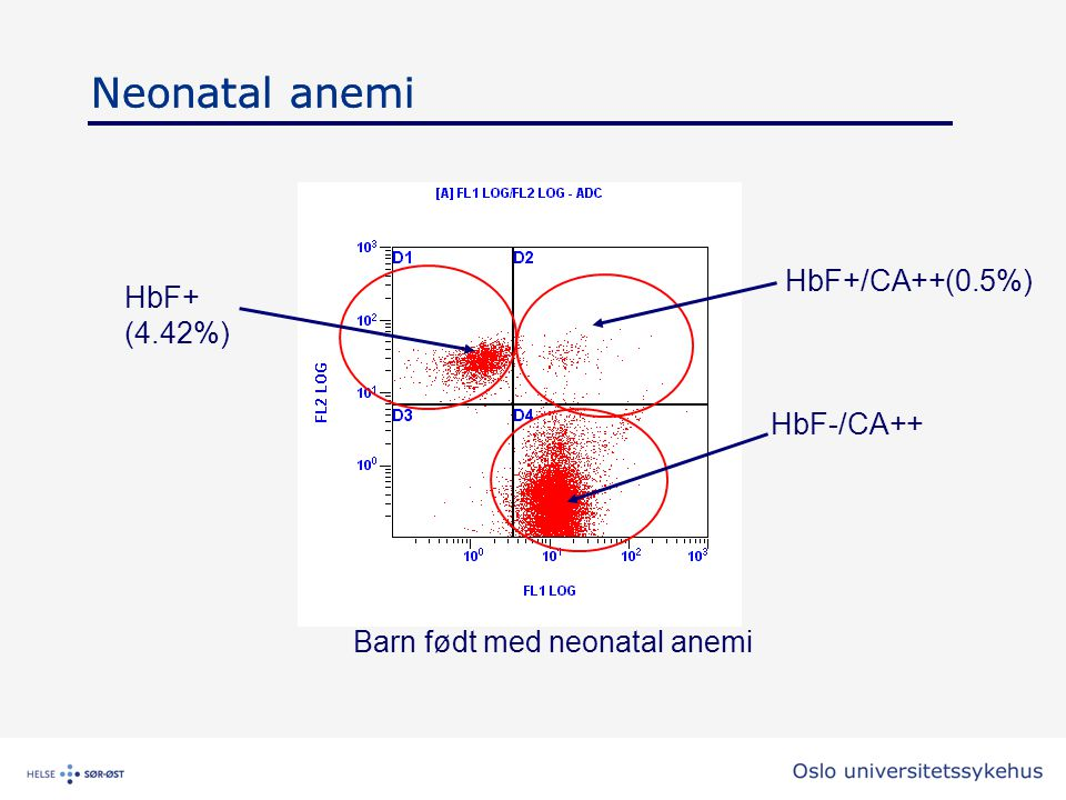 Neonatal anemi Barn født med neonatal anemi HbF+/CA++(0.5%) HbF+ (4.42%) Neonatal anemi HbF-/CA++